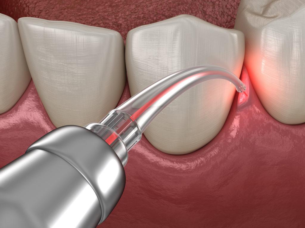 Eine moderne Parodontitis Behandlung
