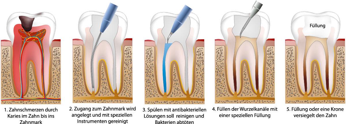 Darstellung einer Wurzelbehandlung