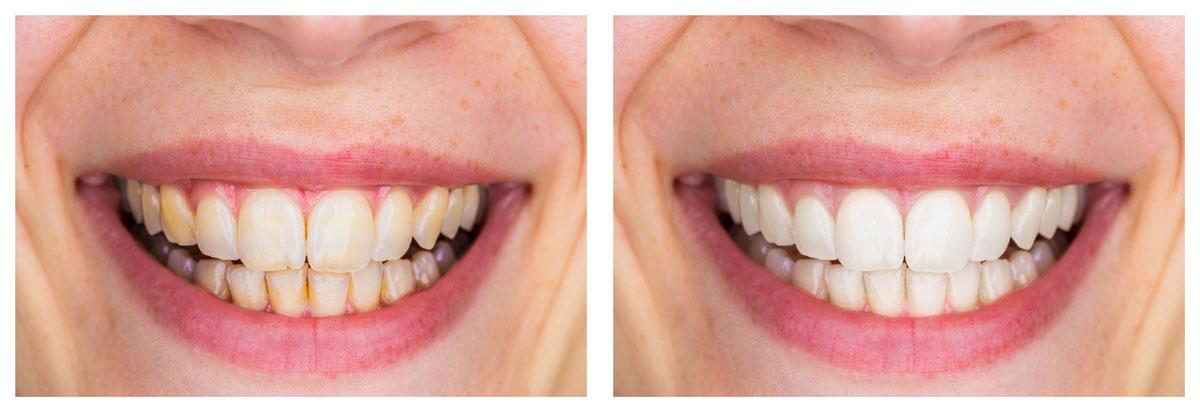 Darstellung Zähne vor und nach dem Bleaching