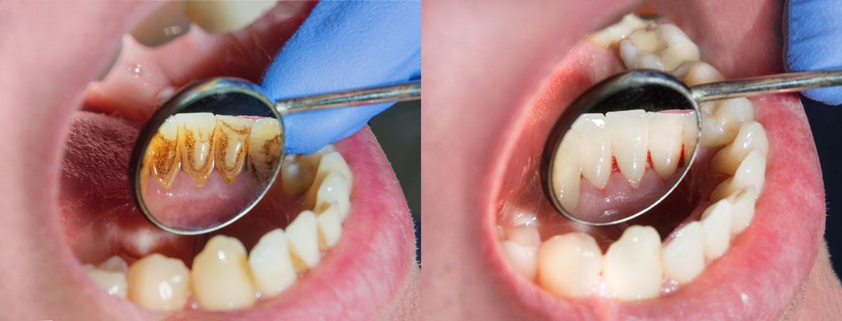 zeigt den Effekt einer Prophylaxe (Zahnreinigung) im Vergleich